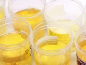 bright yellow urine