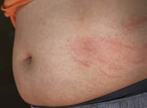 Why Do I Have a Rash On My Stomach After a C-Section?