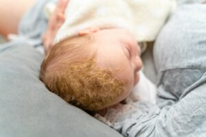 Does Cradle Cap Smell? Why Does My Babies Head Smell So Bad?